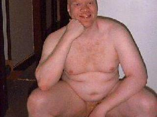 Pics of an Albino Man