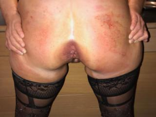 Random pics of my spanked back and ass