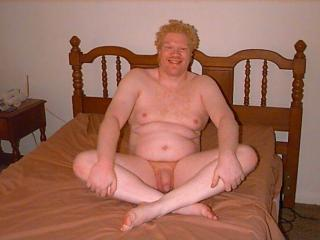 An Albino Man 2 6 of 6